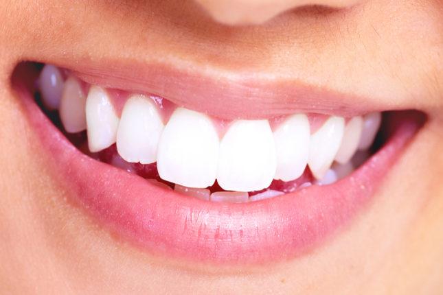 Migliori sbiancanti denti